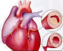 penyembuhan tradisional penyakit jantung koroner